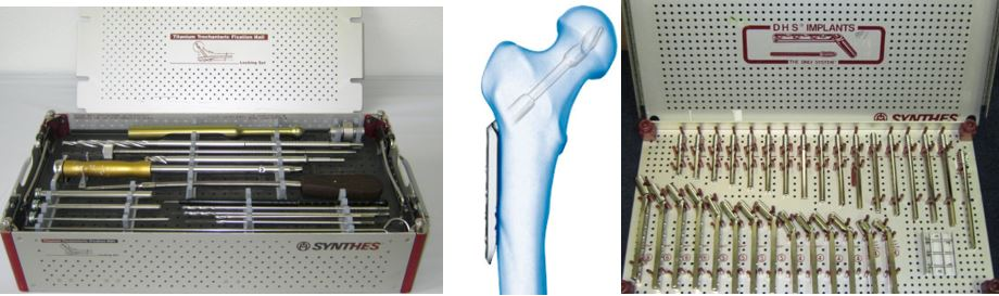 Hip Implants and Instruments